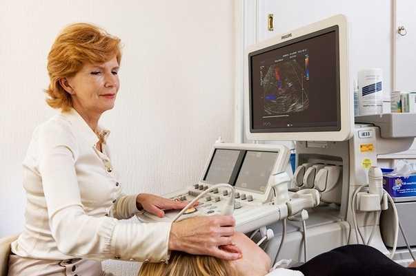 Допплерография сосудов головного мозга