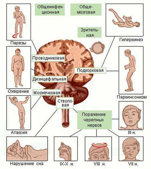 Клинические симптомы энцефалита