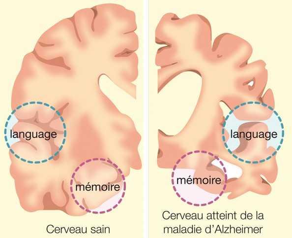 Мозг при деменции