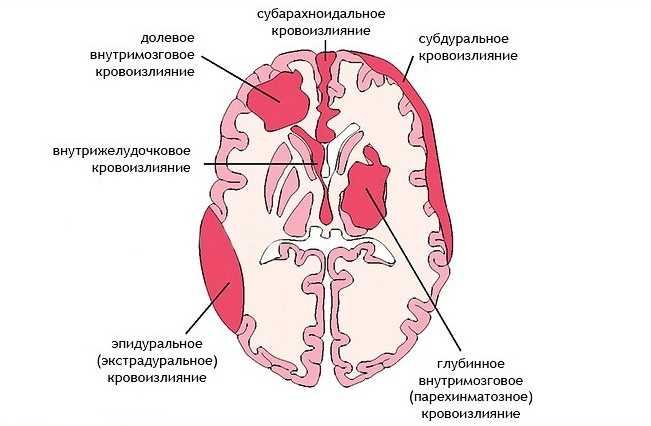 Виды кровоизлияний в головной мозг