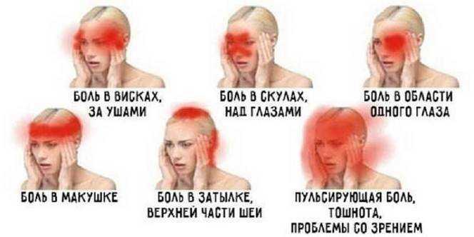 Локализация болевых ощущений в голове