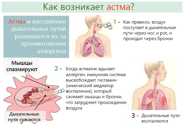 Почему при кашле болит голова