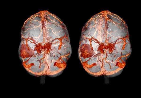 Снимок КТ мозга