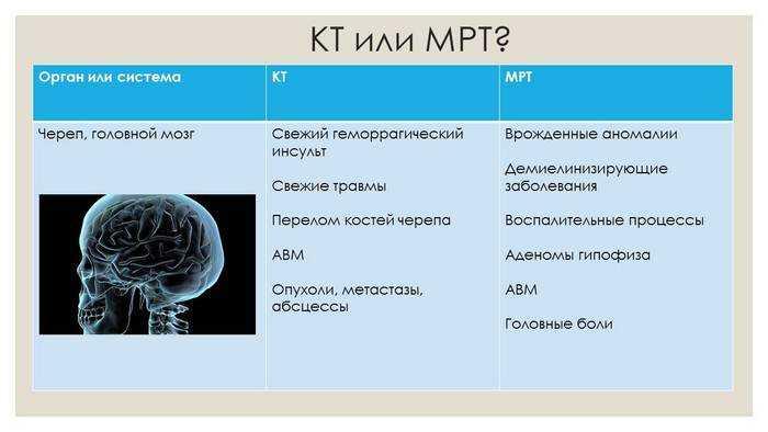 Отличия в области применения КТ от МРТ