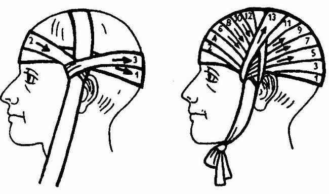 Перевязка головы