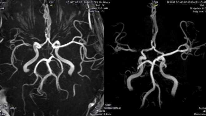 МРТ-ангиография головы