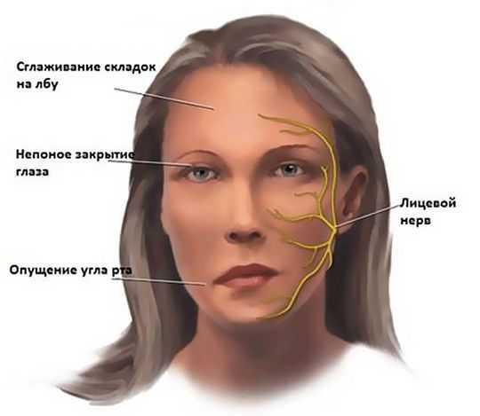 Photo of Симптомы и лечение неврита (воспаления) лицевого нерва