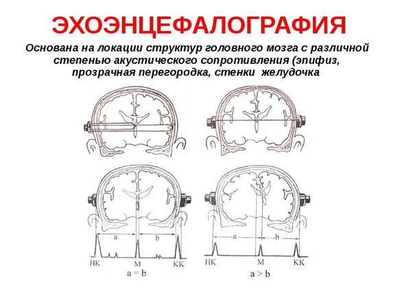 Процедура эхоэнцефалографии