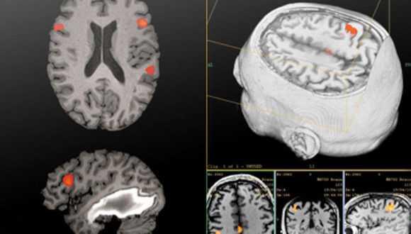 Срезы головного мозга