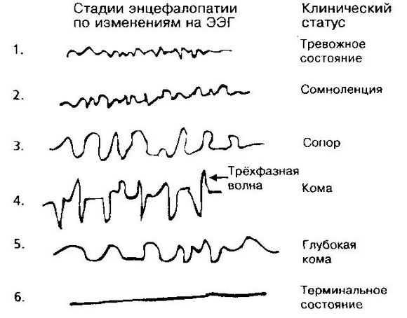 Стадии энцефалопатии на ЭЭГ