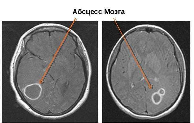 На снимке МРТ абсцесс мозга