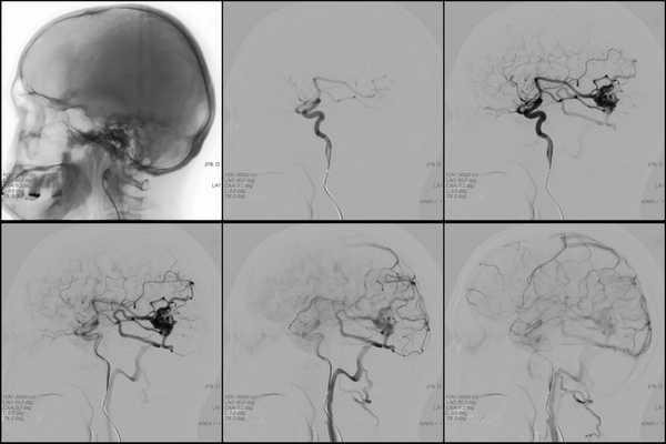 Виды ангиом головного мозга и методы их лечения