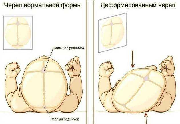 Нормальная и деформированная форма черепа