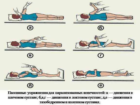 Гимнастика при ОНМК для парализованных конечностей