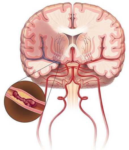 Атеросклеротическая бляшка в сосудах головного мозга
