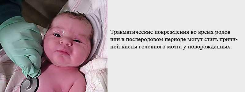 Причины образования кисты головного мозга у новорожденных