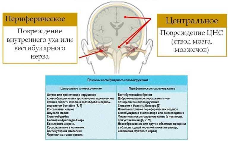 Периферическое и центральное головокружение