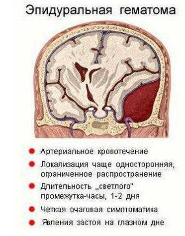 Симптоматика эпидуральной гематомы
