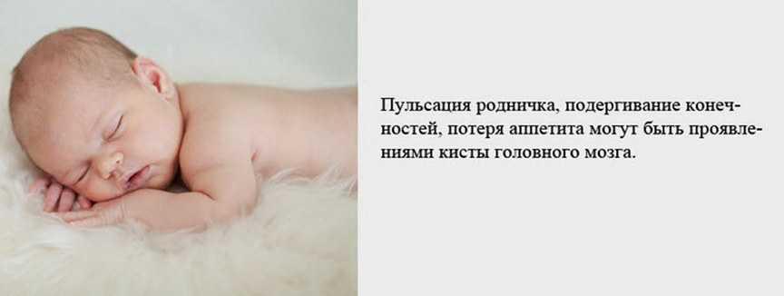 Симптомы кисты головного мозга у новорожденных