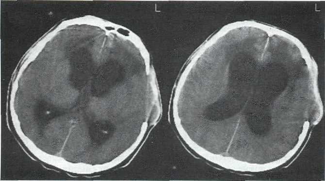 Гидроцефалия на МРТ