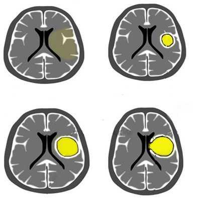Стадии развития абсцесса мозга
