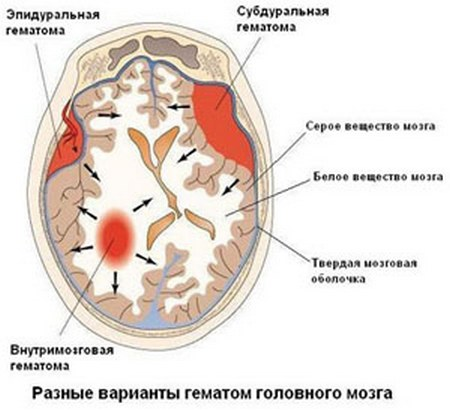 Разные варианты гематом головного мозга