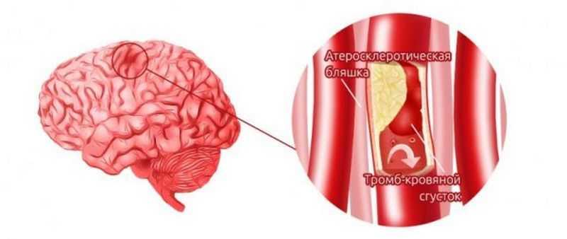 Цереброваскулярная болезнь - Нарушение кровотока в сосудах головного мозга