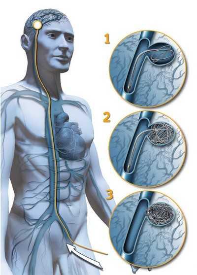 Эндоваскулярная окклюзия