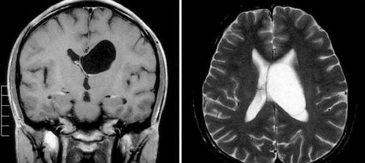 Киста прозрачной перегородки на снимке МРТ