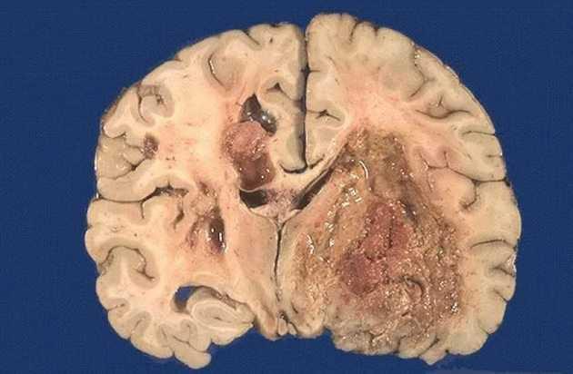 Метастазы в головном мозге