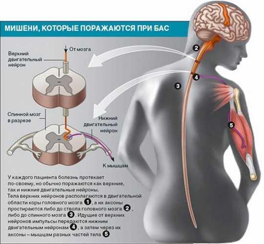 Фото основных очагов поражения при боковом амиотрофическом склерозе
