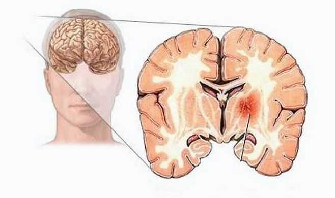 симптомы у опухоли головного мозга