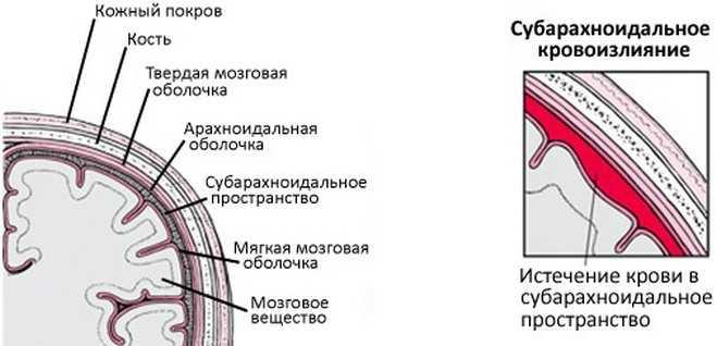 Истечение крови в субарахноидальное пространство