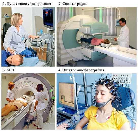 Диагностика цереброваскулярной болезни