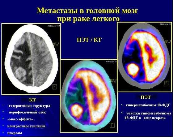 Метастазы в головной мозг при раке легкого