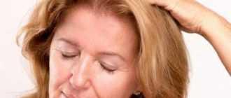 Головная боль в области макушки