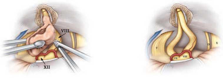 Удаление невриномы слухового нерва