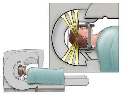 Лучевая терапия для лечения невриномы слухового нерва
