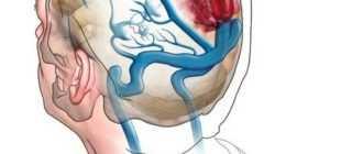 Нарушения венозного оттока головного мозга