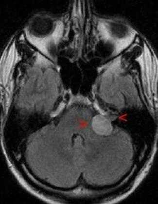 Невринома слухового нерва на снимке МРТ