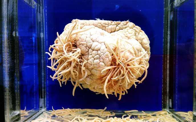 Паразиты в головном мозге
